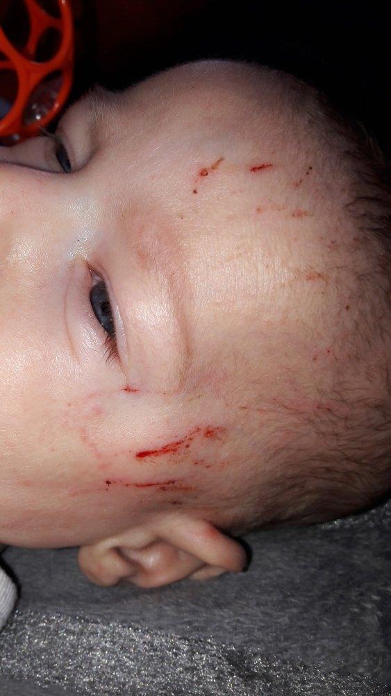 Baby Kratzt Sich Am Kopf Blutig