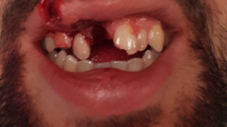 Durch den Sturz hat sich das Opfer einige Zähne ausgeschlagen.