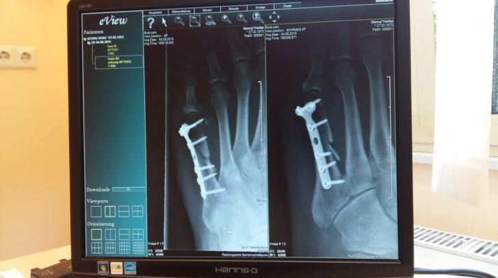 Knochenbrüche, die auch Operationen mit sich führen, können eine Folge von Osteoporose sein.